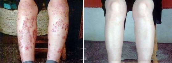 湿疹患者自述治疗经历