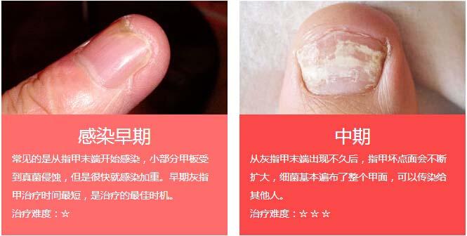 【灰指甲】汉方渗透软化杀菌疗法:杀灭真菌,重焕灰指甲光彩