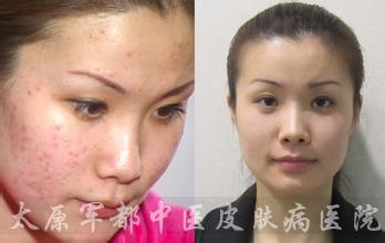 【疤痕】中西疤痕修复综合疗法:再现平滑肌肤