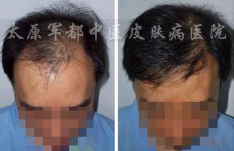 【脱发】汉方小分子激活疗法:激活毛囊,快速再生新发