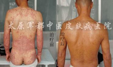 【体癣】臭氧喷雾理疗系统:全面杀灭真菌 高效治疗体癣